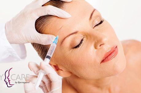 """Botox- eller Filler-behandling Vælg en Botox behandling af følgende områder: Rynker mellem øjenbrynene, """"Kragetæer"""" ved øjnene eller tværrynker i panden. Du kan også vælge en rynkebehandling med Teosyal filler Teosyal 2 – 1 ml (1.675,-)."""