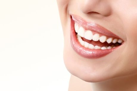 Limpieza bucal con hasta 6 empastes desde 19,90 € en Arija Dental Madrid