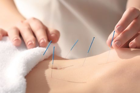 £27 for two acupuncture sessions and a consultation in Fitzrovia
