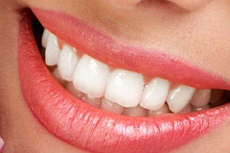 1 o 2 sesiones de blanqueamiento LED y limpieza bucal con ultrasonidos desde 59 €