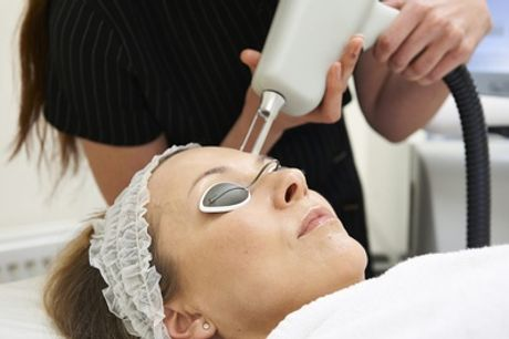 Three 30-Minute Laser Thread Vein Treatment Sessions on One Area or Combination of Areas at The Beauty Station