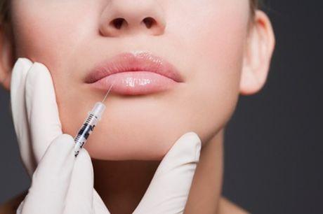 0.55ml or 1ml Dermal Filler Treatment on One Area at Elite Skin