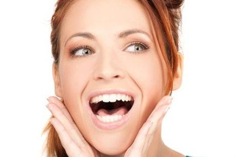 ¡Tratamiento completo de Implante Dental de Titanio + Corona Metal-Porcelana por 800€ en Alcobendas!