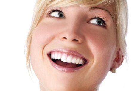 ¡Pack de salud dental con limpieza y kit de cepillado por 9,90€ en Aluche!