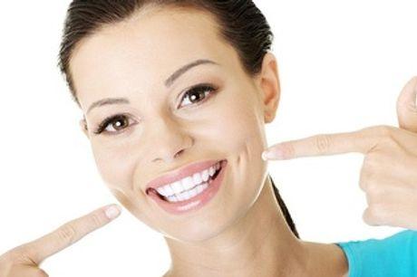 ¡Limpieza bucal con ultrasonidos por 9,95€ en Chamberí!