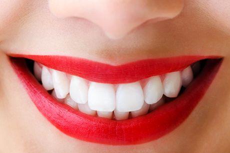 Professionele gebitsreiniging + tandenbleken