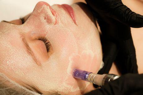 70 el. 85 min. ansigtsbehandling. Få fornyet glød - 3 luksuriøse behandlinger