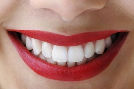 One-Hour Zoom Teeth Whitening Treatment with Optional Custom Trays & Take-Home Gel at Camden Beauty Spa