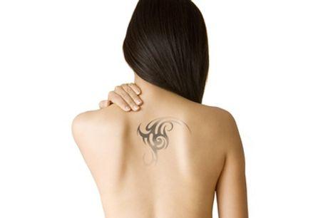 Perfect You Skin Clinic : 1 of 8x een laserbehandeling om je tatoeage verwijderen 5 locaties