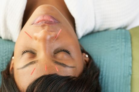 60-Minute Acupuncture Session or 30-Minute Acupuncture with 30-Minute Massage at AcuBreathing (Up to 30% Off)