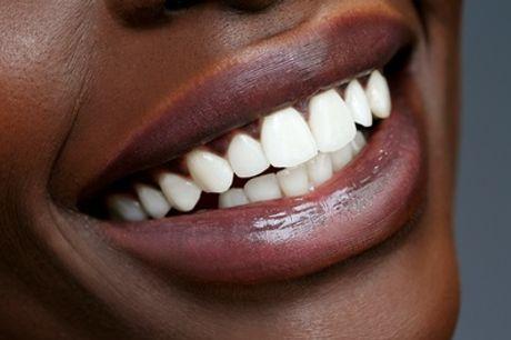 Séances de blanchiment dentaire de 30 min ou d'1h pour 1 personne à L'Institut par Point Soleil
