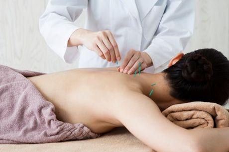30 Min. Akupunktur und 45 Min. Anamnese in der Praxis Cao (bis zu 73% sparen*)