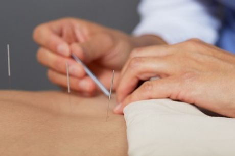Acupuncture and Cupping Session at King's Cross TCM and Herbal Centre UACM (56% Off)