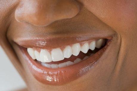 Kosmetisches Zahnbleaching optional mit Refresh in der Beautiful Smile Lounge (bis zu 71% sparen*)