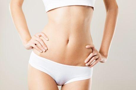 1, 3 of 6x buikwandcorrectie met laser bij Perfect You Skin Clinic